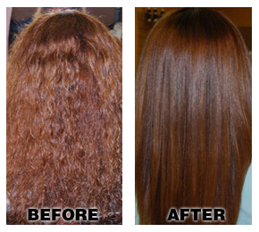 before and after brazilian treatment